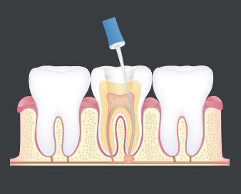 Kyle TX Root Canals
