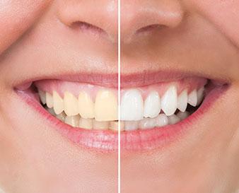 Kyle TX Teeth Whitening