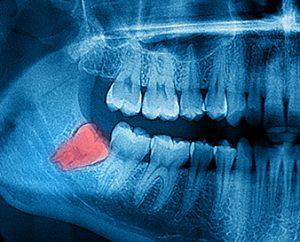 Kyle TX Wisdom Teeth Removal