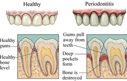 Gum Disease Kyle TX