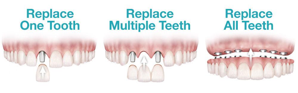 Dental implants in Kyle TX